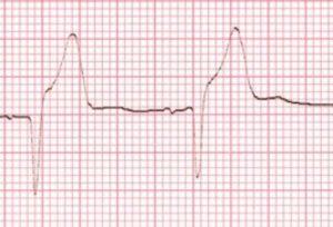 Heart Myocardial infarct gout